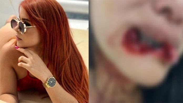 Blogueira arranca lábio de mulher durante briga em Manaus