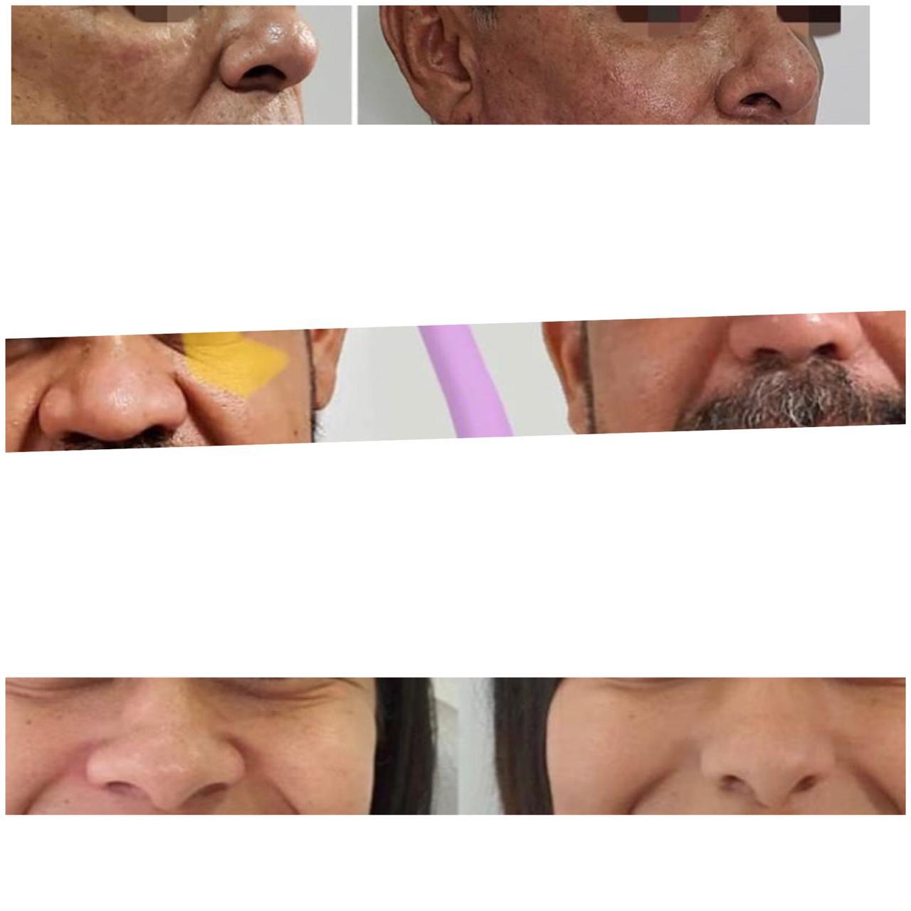Dentista que banca a cirurgiã plástica faz narizes ficarem mais feios do que antes